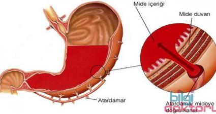 Helicobacter-Pylori-Mide-ulseri