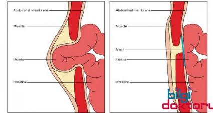 Mide-Fitigi-ve-Reflu-ameliyati-sonuclari