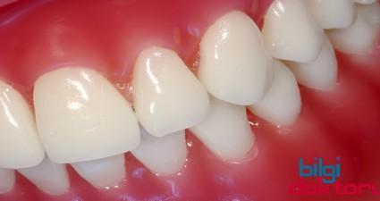 dişteki yapışkan tabakalar