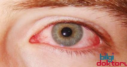 goz-akintisi-resmi-alerjisi-nezlesi
