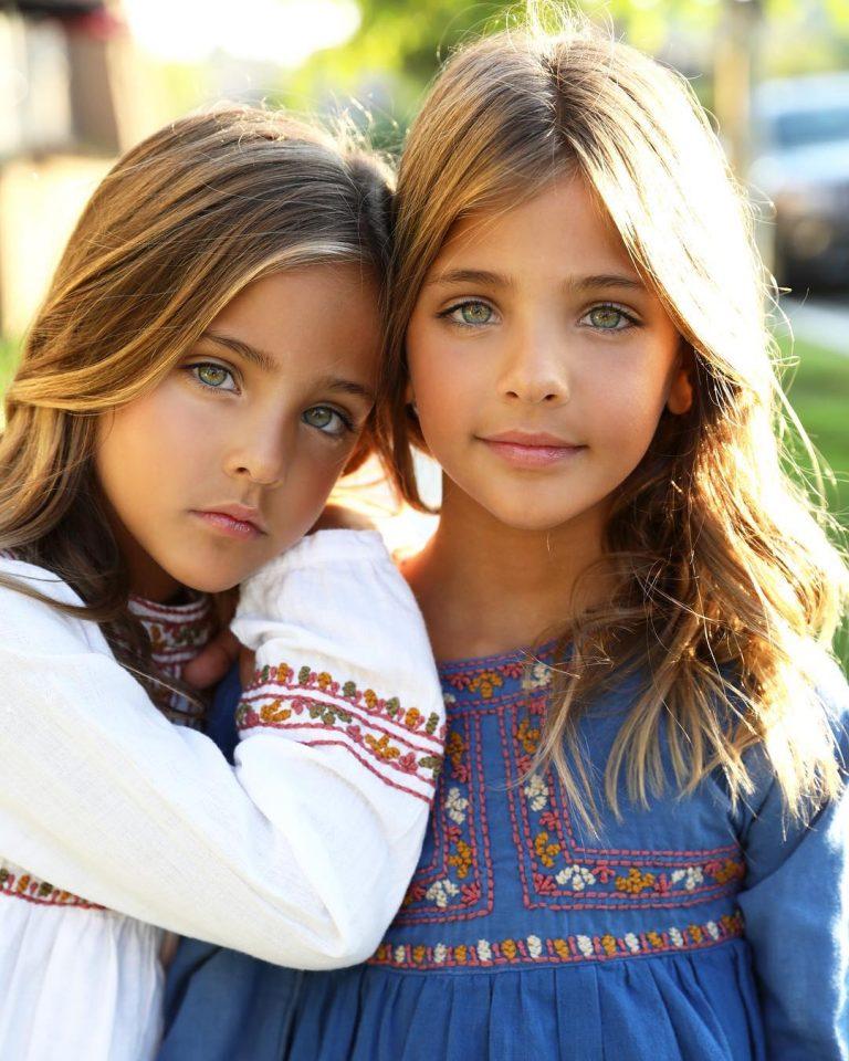 8 Sene Evvel Bebeklere Dünyanın En Güzel İkizleri Bakın Şimdilerde Ne Haldeler 1